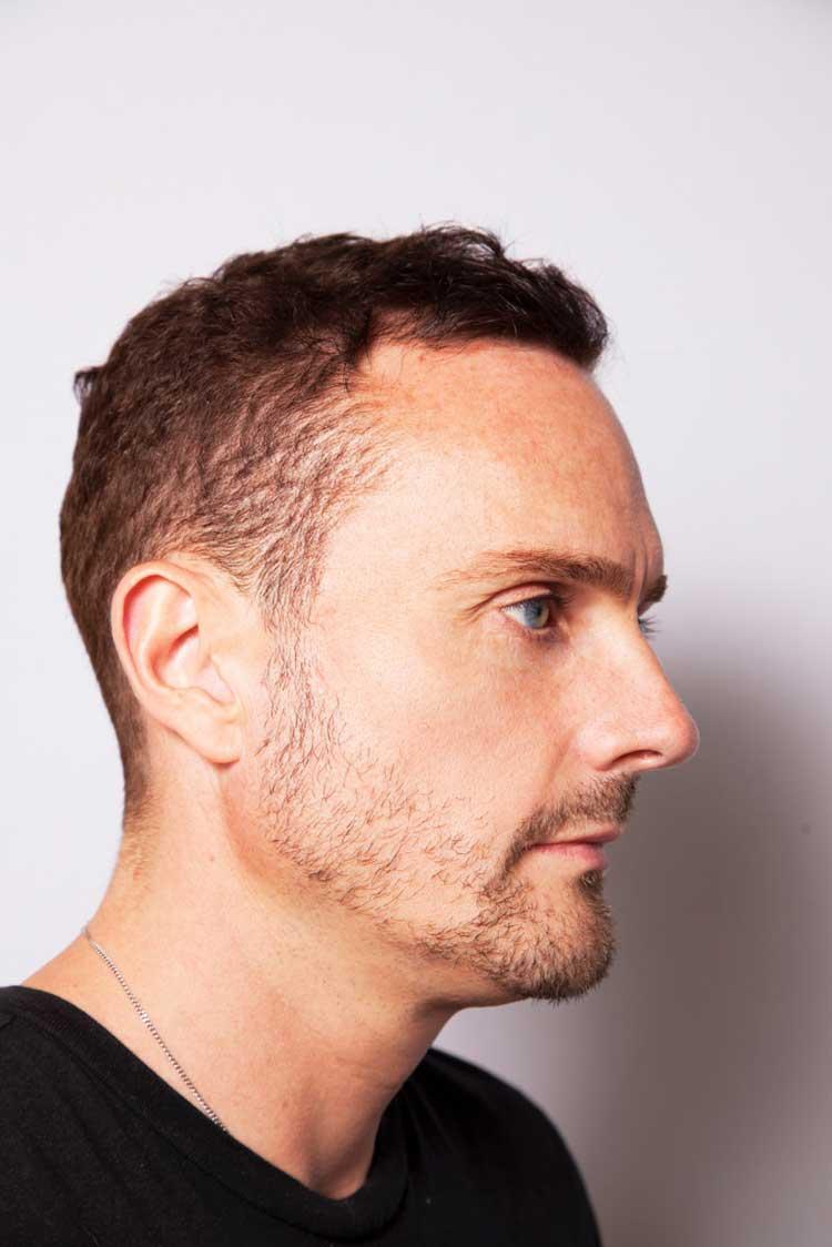 Nu Cosmetic Clinic Charlie Mcdonald Botox for men UK  (1)