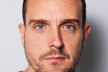 Nu Cosmetic Clinic Charlie Mcdonald Botox for men UK  (3)
