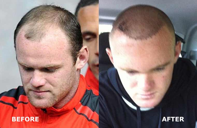 wayne-rooney-before-and-after-hair-transplant