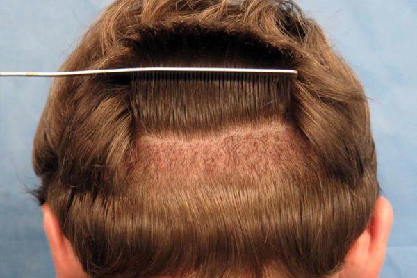 Unshaven Hair Transplant
